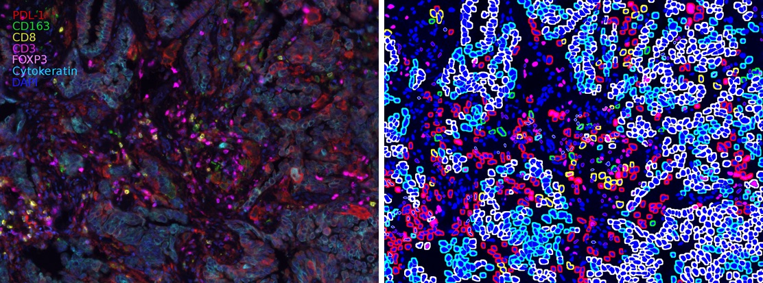 Many small, colorful circles in blue, pink, and purple show individual cells from a lung cancer biopsy.