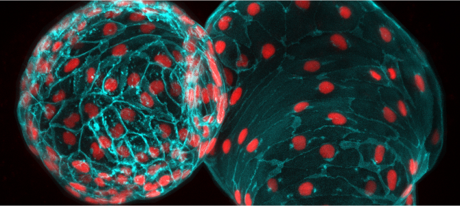 Heart muscle membrane and its nuclei of zebrafish heart, viewed through a microscope (CZI Imaging).