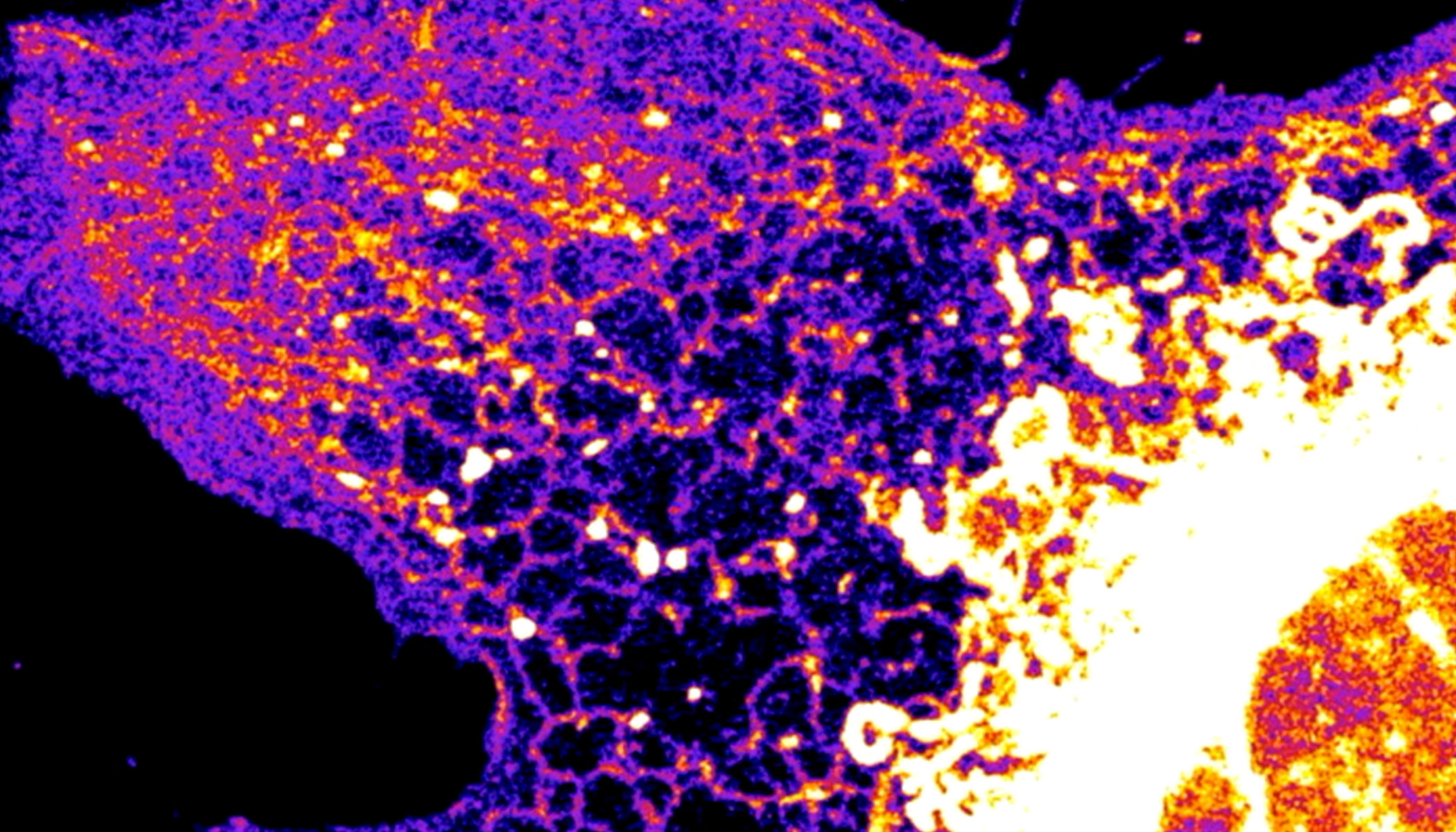 A purple and pink fibroblast cell is displayed against a black background.